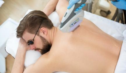 IPL-Haarentfernung bei Männern