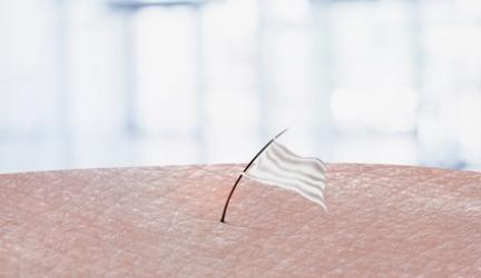 Haarentfernung mit Licht – Funktionsweise, Voraussetzungen & Risiken