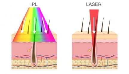 IPL oder Laser? Vor- und Nachteile im Überblick